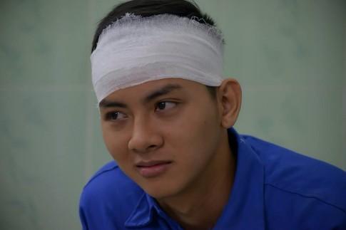 Vì phim mới, Hoài Lâm phải 'bị đánh' phải... 'băng đầu', 'nhập viện'