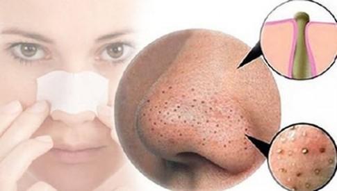 Bí quyết mới: Kem đánh răng có thể trị mụn đầu đen
