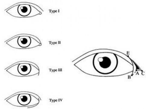 Cận cảnh phương pháp kích mắt to bằng phẫu thuật khóe