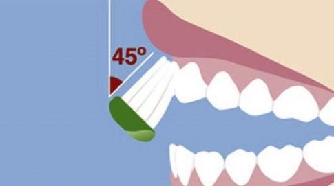 Phải làm sao khi đánh răng nhiều mà miệng vẫn hôi, lợi vẫn viêm?