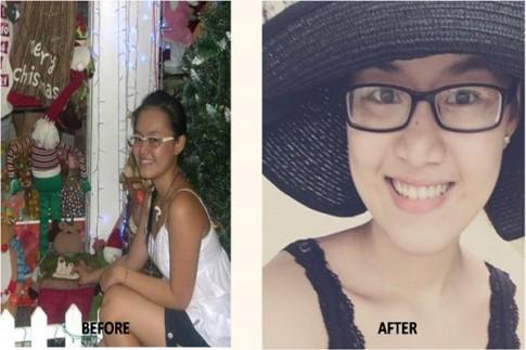 Cô gái Việt tắm trắng hiệu quả tại nhà chỉ trong 3 tuần