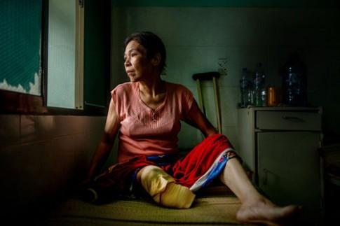 Báo động bệnh nhân bị cắt chân do biến chứng tiểu đường