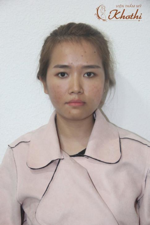 """Hành trình """"lột xác"""" thành hot girl của nữ công sở Sài Gòn từng đau khổ vì da mụn, thâm"""