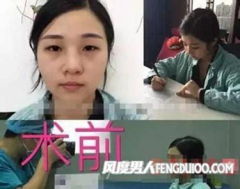 Cô gái 8 lần phẫu thuật để giống hệt Phạm Băng Băng