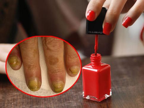 Dùng sơn móng kém chất lượng có thể gây rối loạn sinh sản, ung thư, rối loạn nội tiết