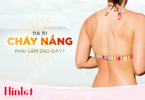 "Tai sao mac ao chong nang ""kin mit"" ma da van cu den?"